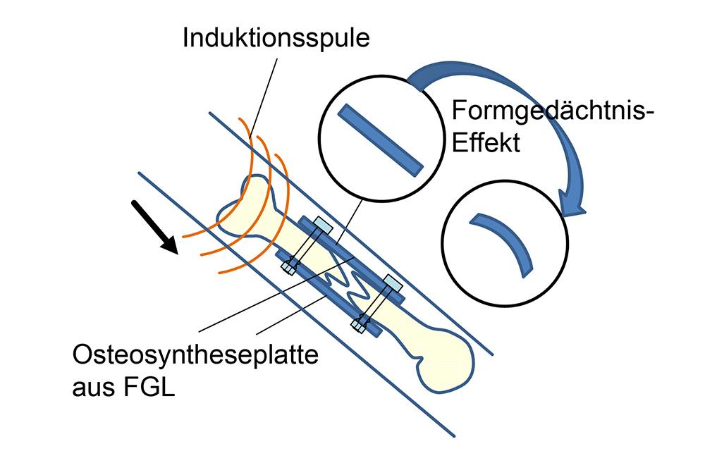 IW_Formgedaechtnis_Bild4_Implant_01