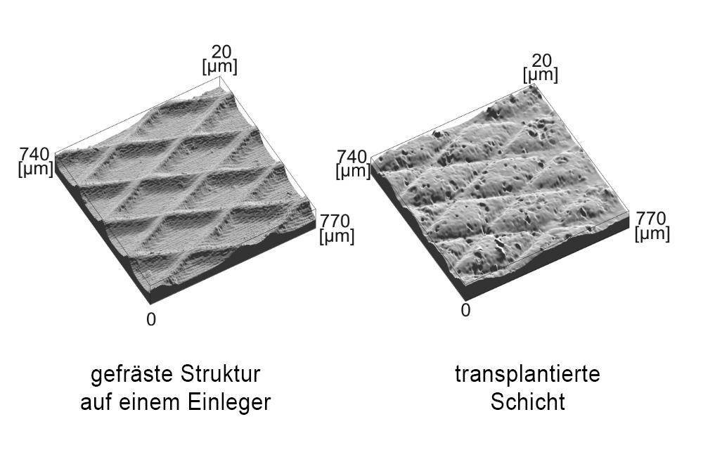 IW_Transplantation_Bild4_DE