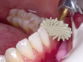 Automated tooth polishing thanks to intelligent machinery