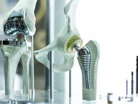 Haltbarere Implantate durch Kanäle in der Beschichtung
