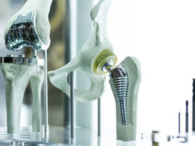 More durable implants by coatings with capillary texture