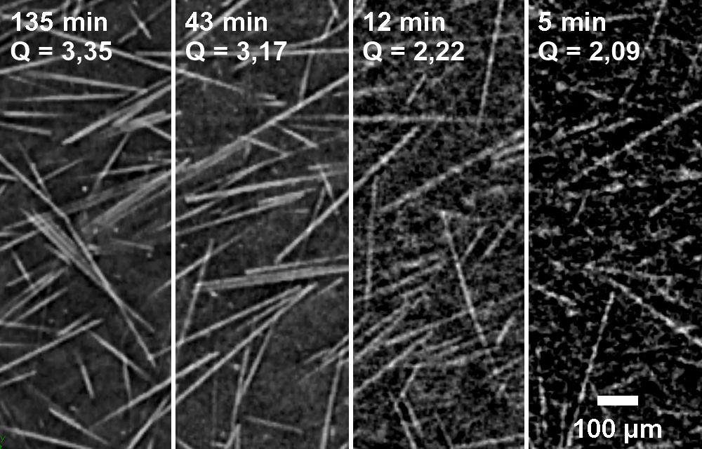 Bild 2: Bildqualität von CT-Messungen einer glasfaserverstärkten Probe in Abhängigkeit von der Messdauer. (Foto: IKK, Bittner)