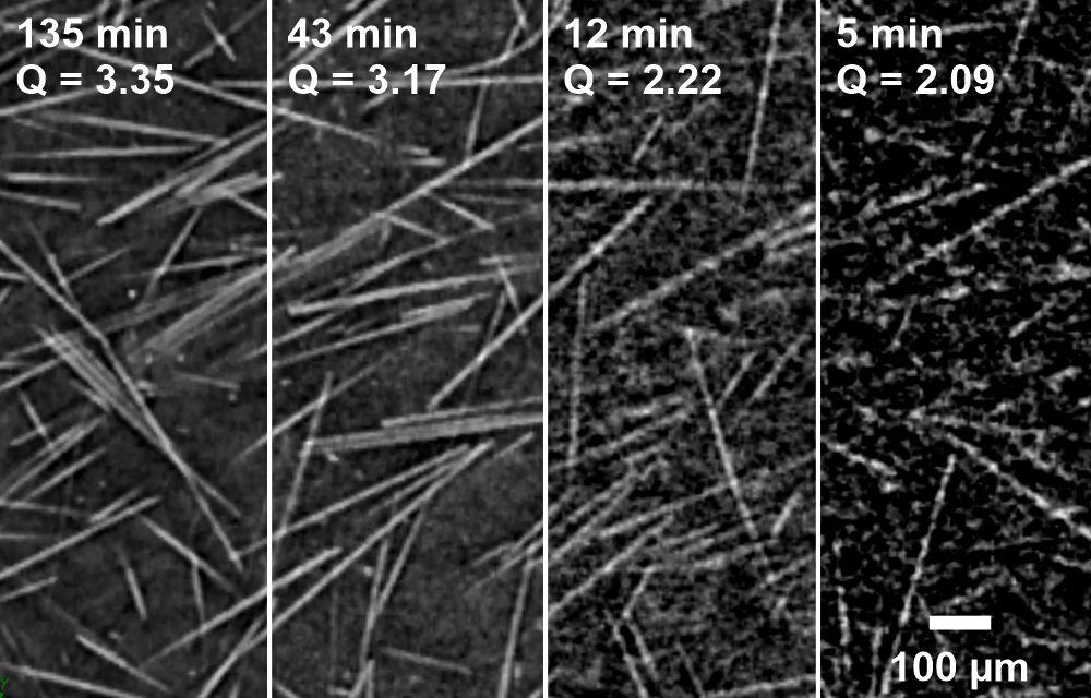 Figure 2: Image quality of CT measurements of a glass fiber reinforced sample depending on measurement duration. (Photo: IKK, Bittner)